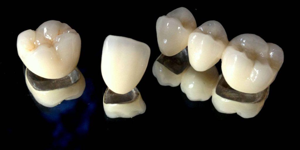 коронка зубная металлокерамическая