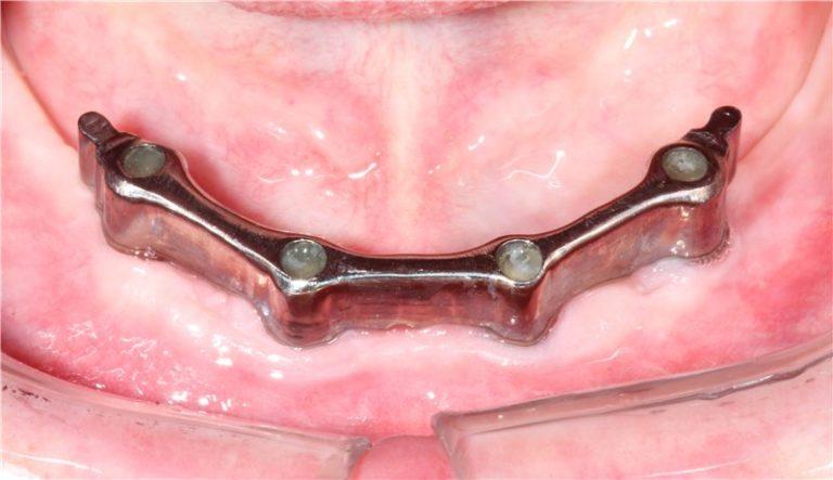 Балочное протезирование