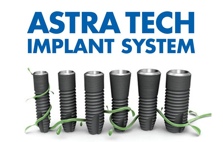 Имплантация Astra Tech