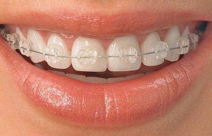 ceramic-braces